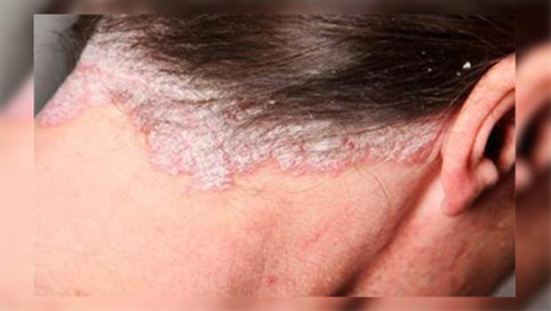 بیماری درماتیک سبورئیک