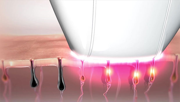 تفاوت لیزر با الکترولیز