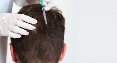 Head mesotherapy