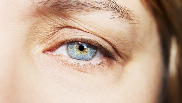 درمان افتادگی پلک فوقانی