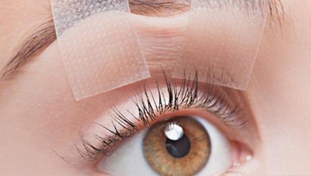 درمان افتادگی پلک فوقانی با پلکسر